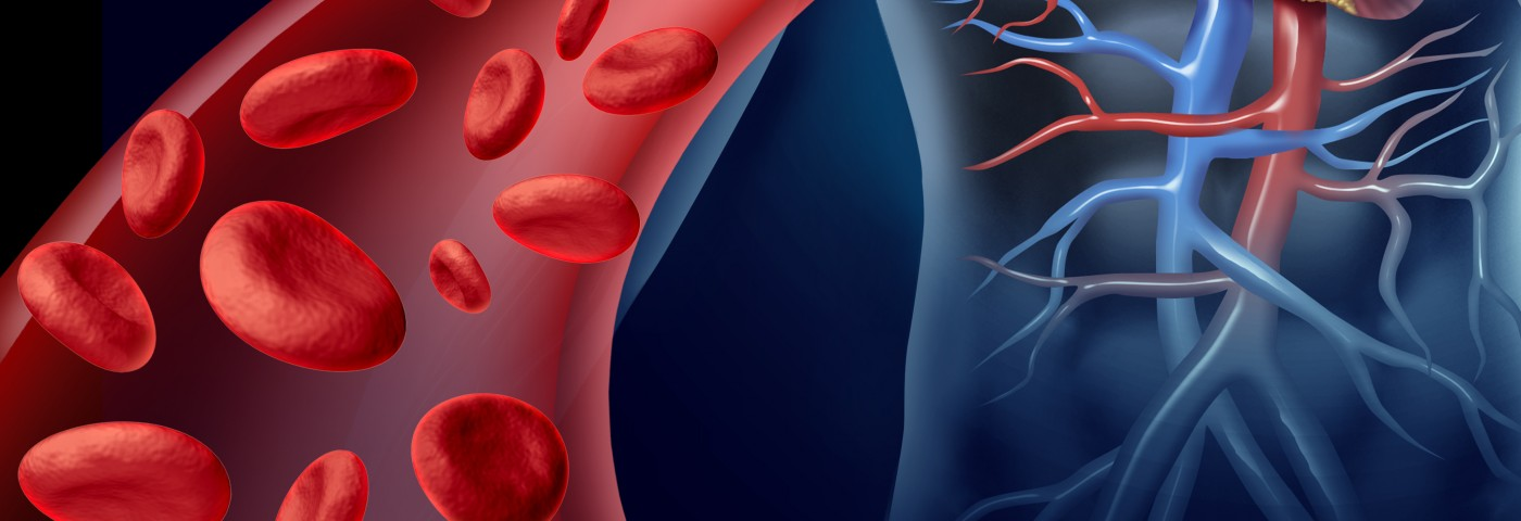 Children with Sickle Cell Anemia at Higher Risk of Stroke, Brazilian Study Reports