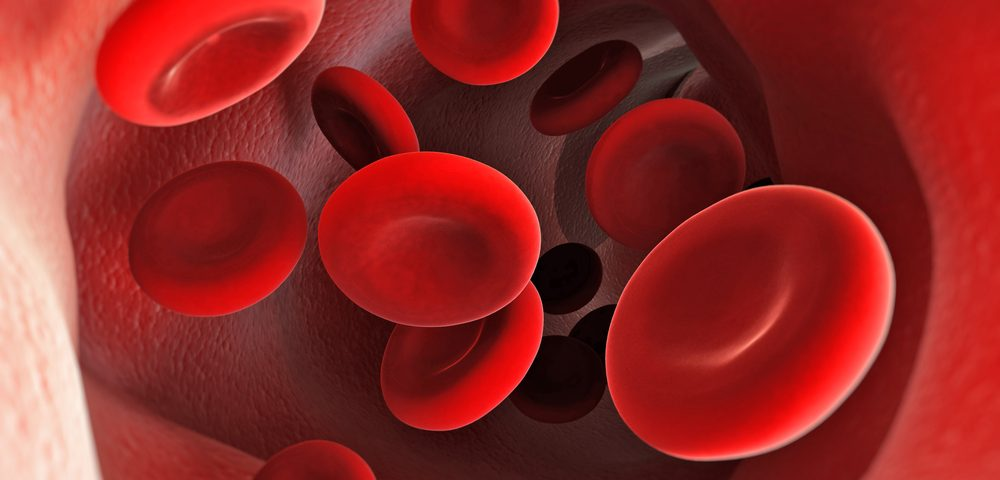 Researchers Develop Low-cost Sickle Cell Anemia Screening Test for Developing Countries