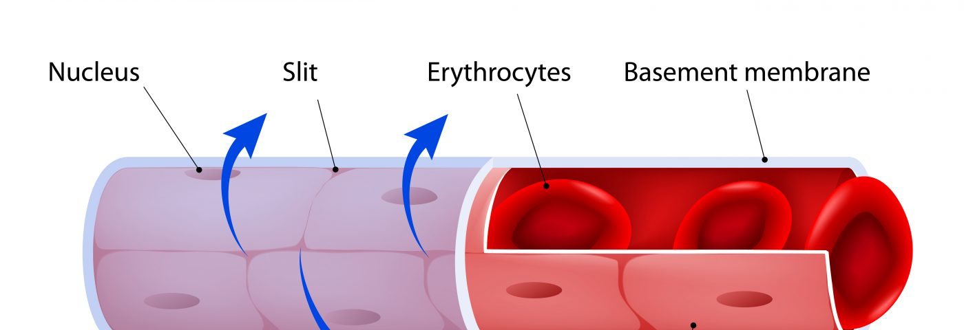Dysfunctions in Blood Vessel Cells Linked to Albuminuria in Sickle Cell Disease